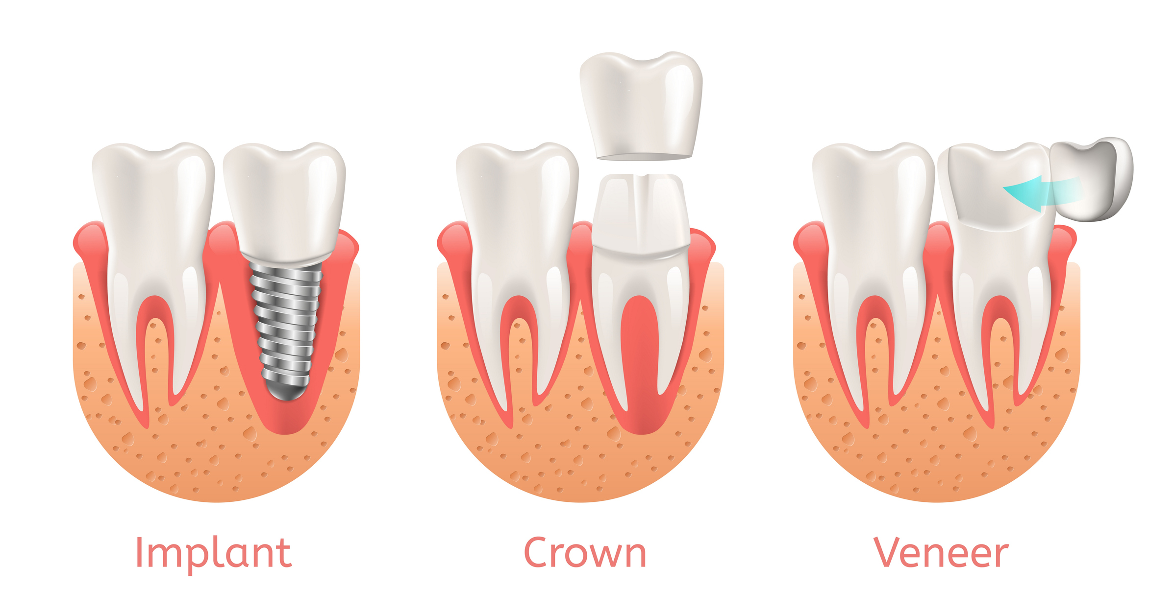 Three examples of what a dental implant, dental crown, and a veneer look like.