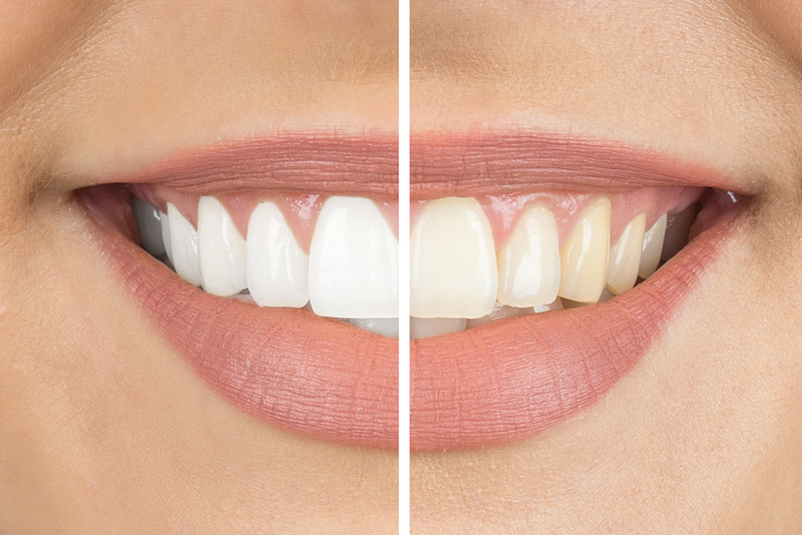 Before and after photo of a women smiling after professional teeth whitening treatment