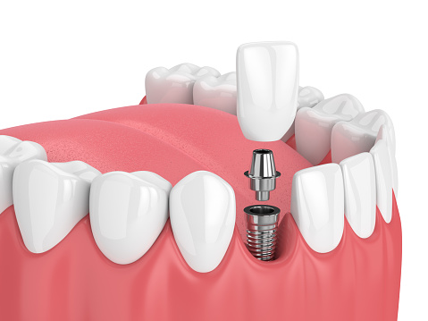 3d render of jaw with teeth and dental incisor implant.