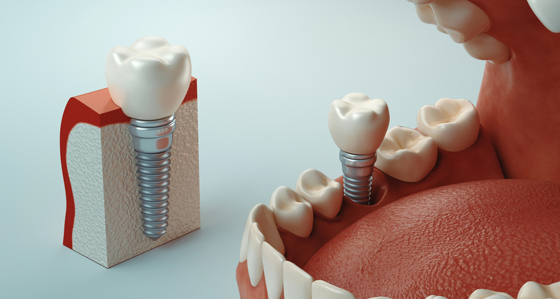 Dental care photo of a 3D rendering of dental implants